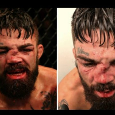 UFC Fighter Mike Perry Suffers One Of worst broken noses you'll ever see